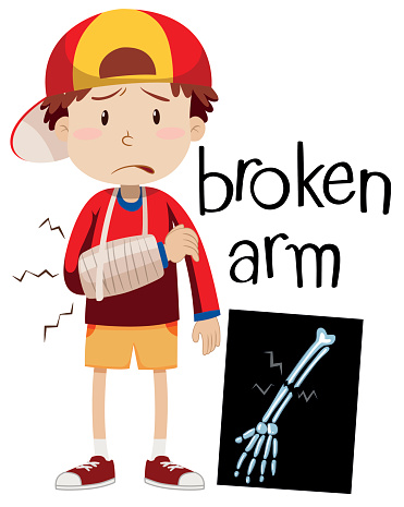 Boy with broken bone and x-ray .