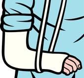 Broken Arm. cast on an arm
