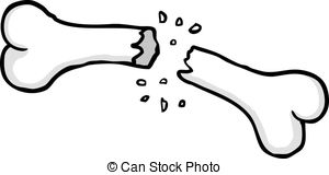 ... Broken Bone - Painted Broken Bone, V-... Broken bone - Painted broken bone, vector illustration-7