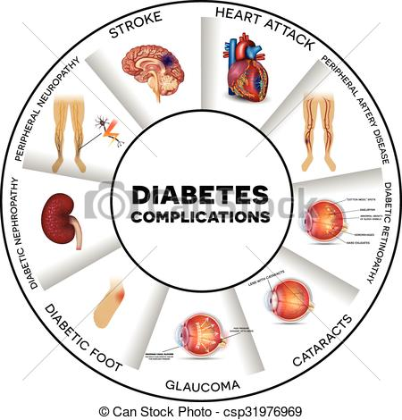 Diabetes Affects... Diabetes Complicatio-Diabetes affects... Diabetes complications Clip Art ...-3