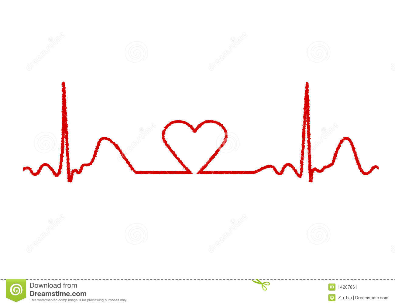 Ekg clip art tumundografico 5. Illustration Of Electrical Activity Of The Human Heart