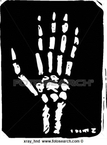 Hands X-ray Clipart - Clipart Kid-Hands X-ray Clipart - Clipart Kid-7