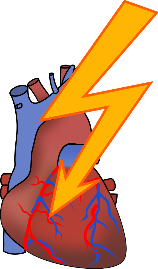 Heart Attack Clip Art-Heart Attack Clip Art-9