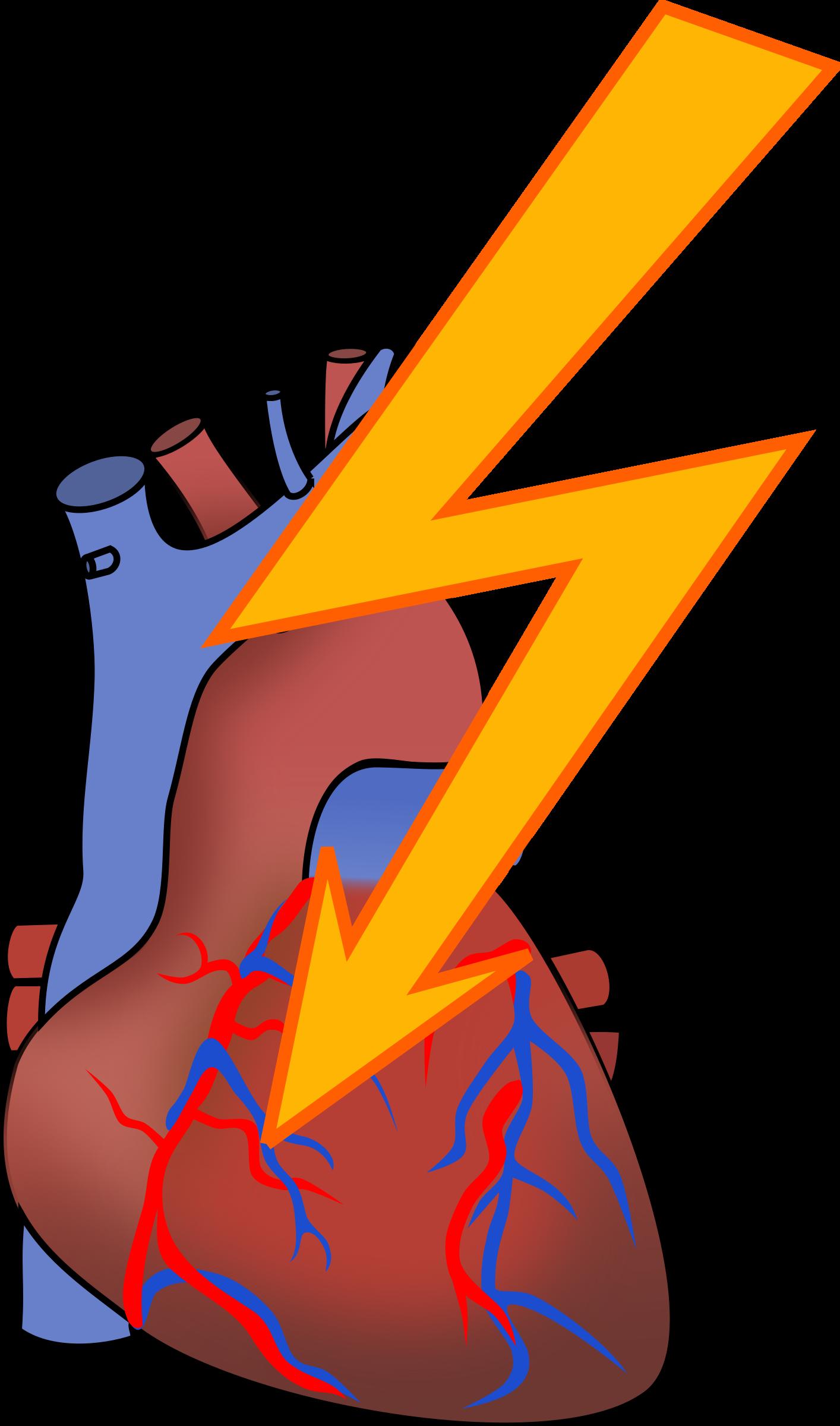 Heart Attack-Heart attack-10