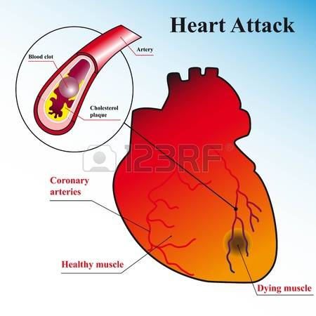 heart disease: Schematic explanation of the process of heart attack