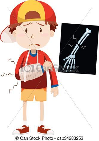 ... Sad Boy With Broken Arm Illustration-... Sad boy with broken arm illustration-17