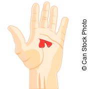 . ClipartLook.com Wound On Hand - The Pa-. ClipartLook.com Wound on hand - The Palm of the person with wound and.-20