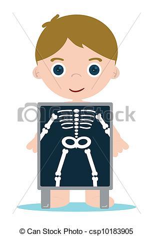x ray bones kid - x ray check bones kid